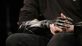 3-D Printing May Be the Future of Prosthetic Science