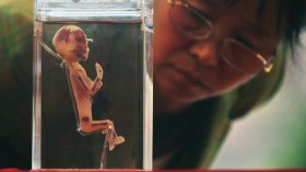 Human Body's Wonder Scientific Travelling Exhibition Held In Nanjing