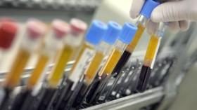Israeli Laboratory Leads Western World In Blood Testing