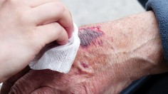 Blue-Green Algae Could Speed Up Wound Healing