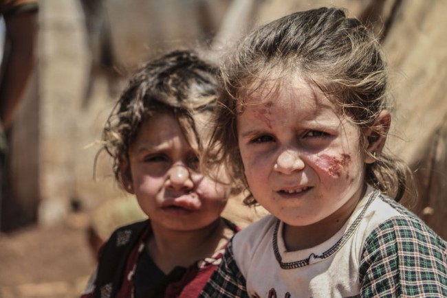 Leishmaniasis disease spreads in refugee camps in Idlib